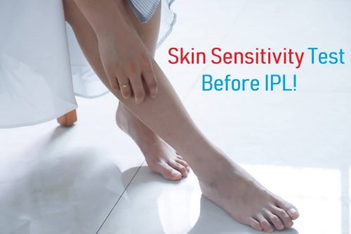 Skin Sensitivity Test