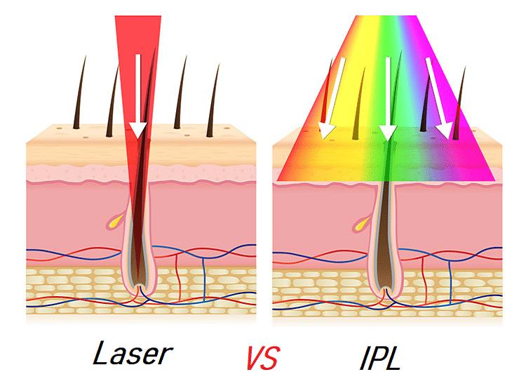 Laser VS IPL