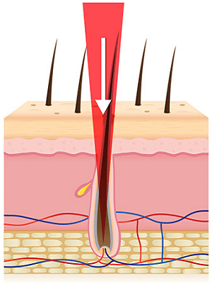 How Brazilian Laser Hair Removal Works