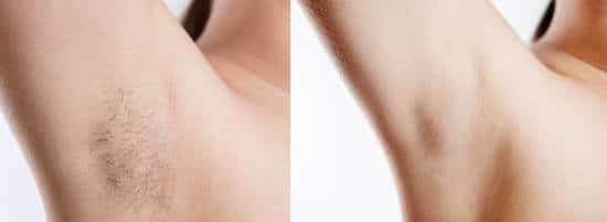 epilating armpits before and after